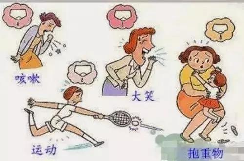 北京美天王秀院长:三大手段有效治疗女性尿失禁